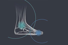 Vos spécialistes en Orthopédie Pied et Cheville