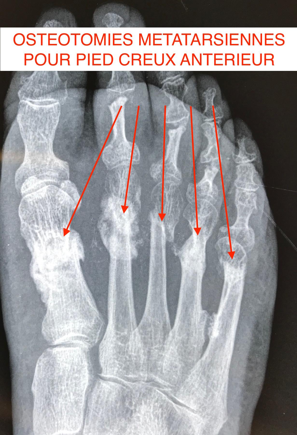 Radio  osteotomies métatarsiennes percutanées pied creux antérieur Docteur Cyril PERRIER Chirurgie pied cheville PCNA NANTES SAINT HERBLAIN