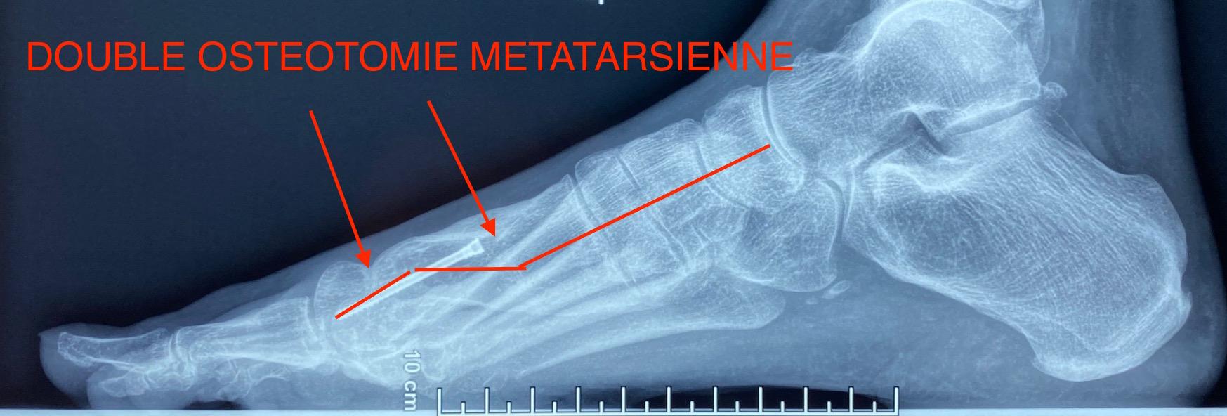 Radio double osteotomie métatarsienne pied creux Docteur Cyril PERRIER Chirurgie pied cheville PCNA NANTES SAINT HERBLAIN