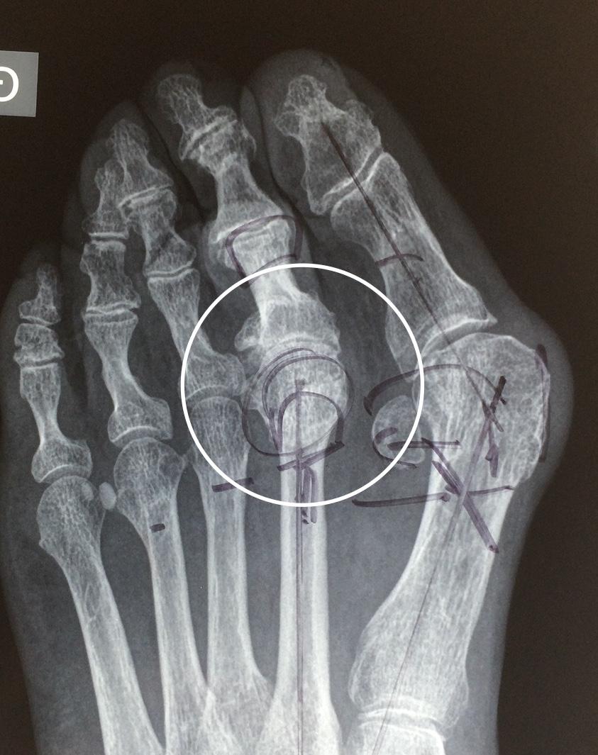 arthrose métatarsophalangienne évoluée Docteur Cyril PERRIER chirurgie pied PCNA NANTES SAINT HERBLAIN