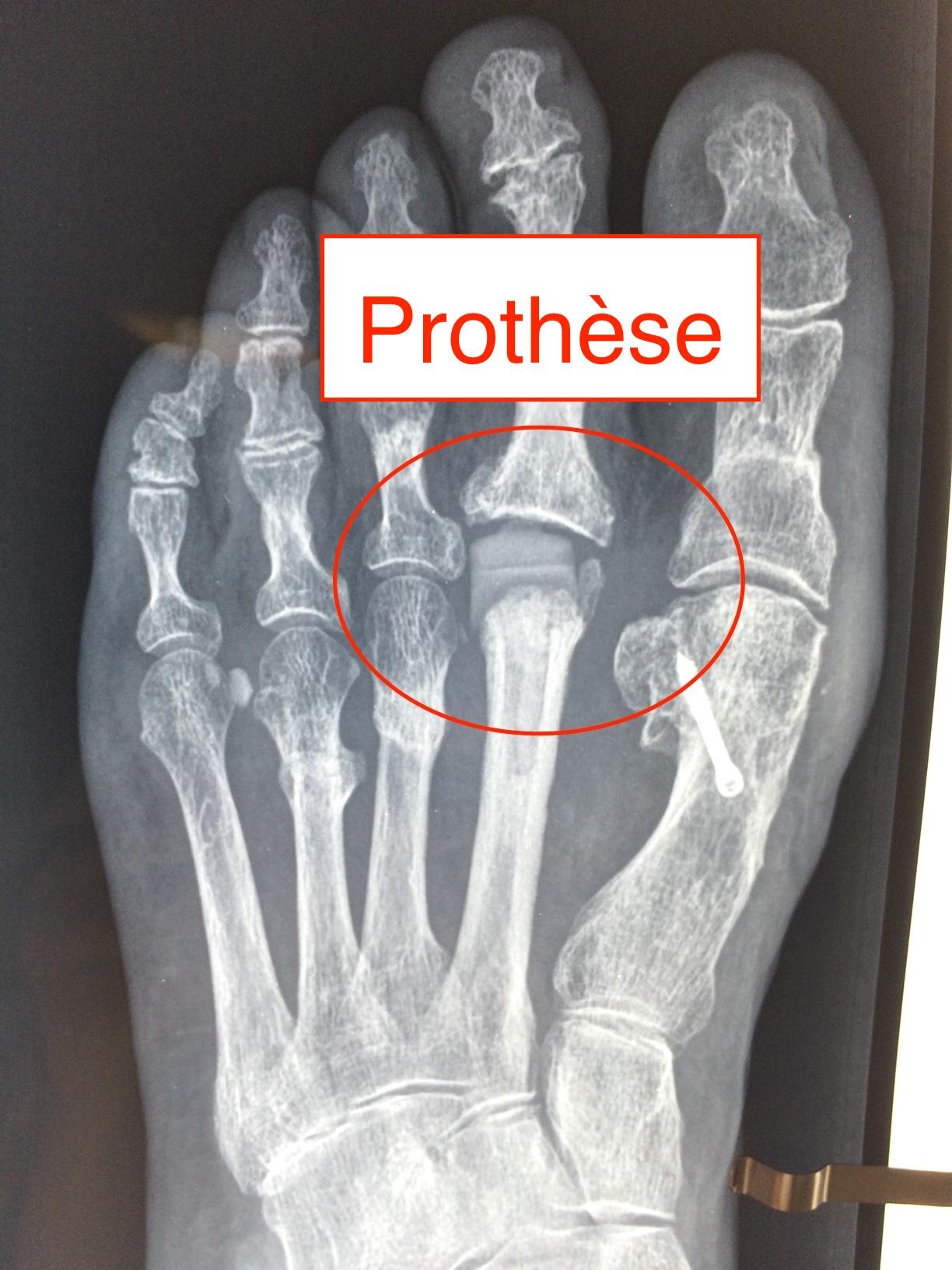radiond'une prothèse métatarsophalangienne en silicone Docteur Cyril PERRIER chirurgie pied PCNA NANTES SAINT HERBLAIN