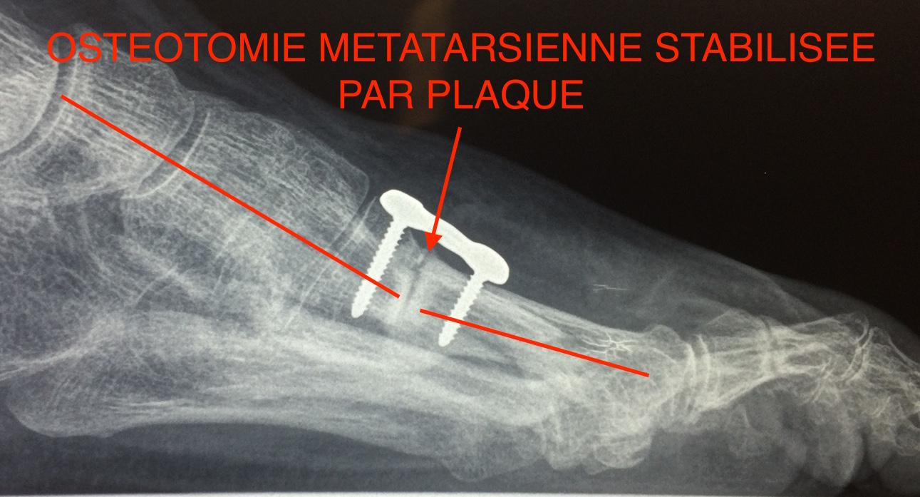 Radio plaque osteotomie métatarsienne pied creux Docteur Cyril PERRIER Chirurgie pied cheville PCNA NANTES SAINT HERBLAIN