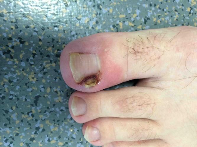 Ongle incarn pcna pied cheville nantes atlantique - Coupe des ongles de pieds ...