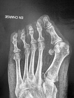 Hallux valgus: image radiologique de la déformation Dr PERRIER Cyril Dr LOPES Ronny