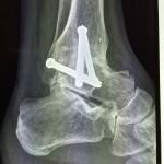 arthrodèse de cheville par vis de profil pour traiter une arthrose de cheville