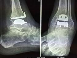 Prothèse de cheville sur bilan radiologique pour arthrose de cheville Dr PERRIER Cyril Dr LOPES Ronny Centre PCNA  Pied et Cheville Nantes Atlantique