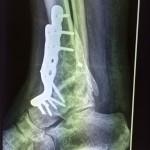 arthrodèse de cheville par plaque de profil pour traiter une arthrose de cheville