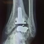 descellement  d'une prothèse cheville mise en place pour arthrose de cheville