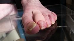 orthoplastie d'orteil par Mme Adeline LE FRANC Podologue kinésithérapeute du Centre PCNA (Pied Cheville Nantes Atlantique)