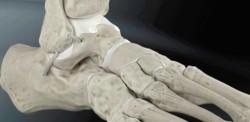 ligamentoplastie de cheville anatomique