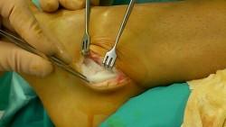 tendinopathie fibulaire