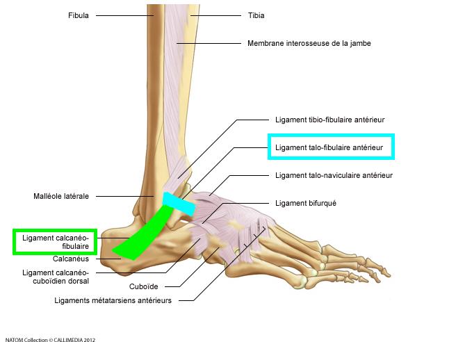 Instabilit chronique de cheville pcna pied cheville for Douleur genou exterieur
