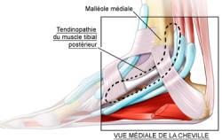 Tendinopathie tibiale postérieure