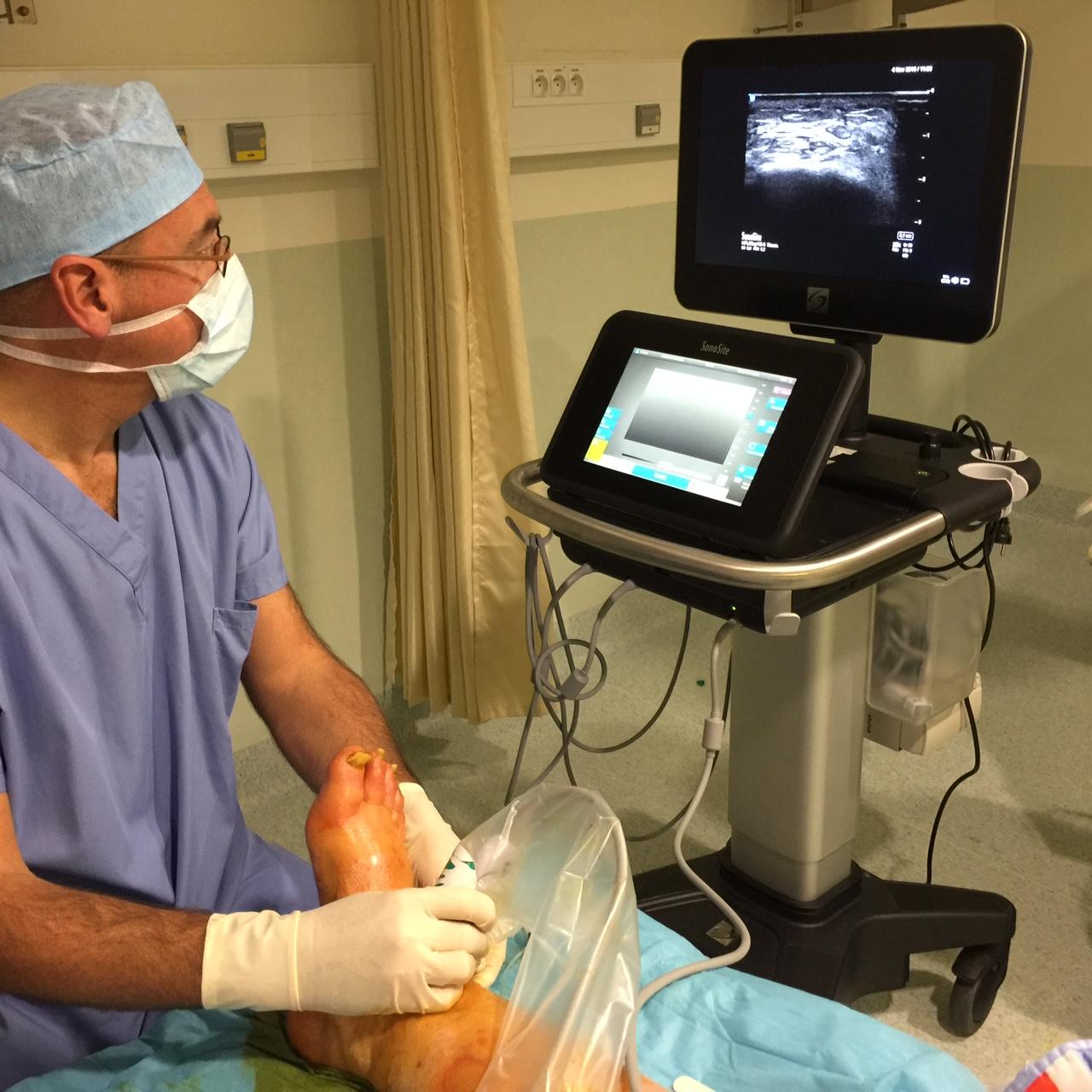 Dr Hervé LE GUEN pratiquant une anesthésie locorégionale du pied sous échographie avant une intervention ambulatoire réalisée par le Dr Cyril PERRIER