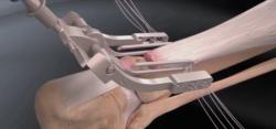 Réparation mini-invasive du tendon d'Achille