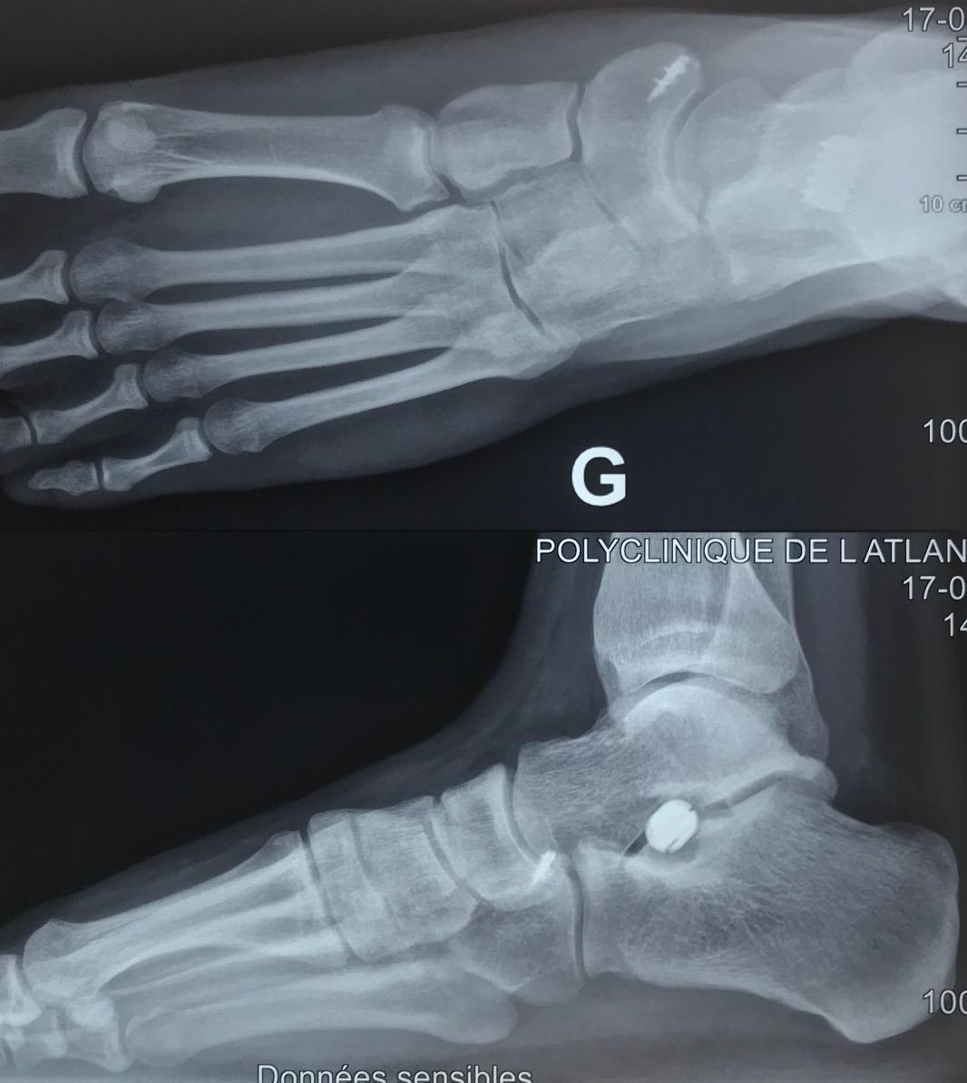implant sous talien et réparation du tendon tibial postérieur avec transfert du fléchisseur des orteils chirurgie pied plat : vue radiologique Docteur Cyril PERRIER CHIRURGIE PIED CHEVILLE  PCNA NANTES SAINT HERBLAIN